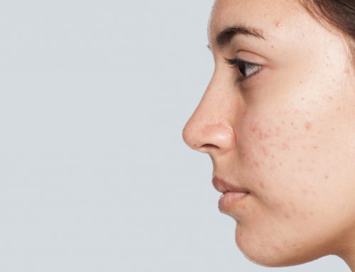 How To Treat Marks Left By Acne