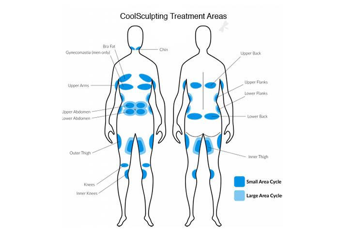 CoolSculpting-Treatment-Areas