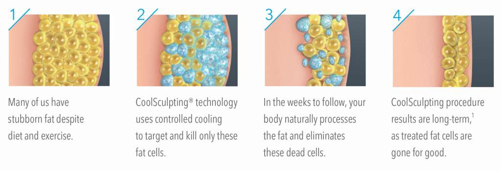 How-CoolSculpting-Works-Across